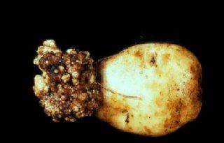 NVWA+vindt+wratziekte+op+twee+Groningse+aardappelpercelen